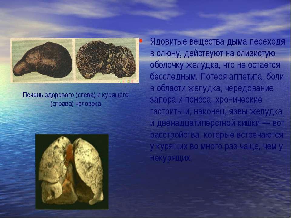 Ядовитые вещества дыма переходя в слюну, действуют на слизистую оболочку желу...
