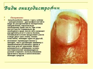 Виды ониходистрофии Онихошизис (onychoschizis; онихо + греч. schisis – р...