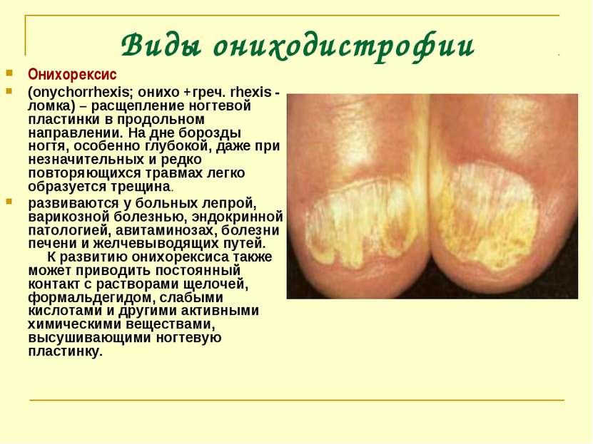 Виды ониходистрофии Онихорексис (onychorrhexis; онихо +греч. rhexis - ломка) ...