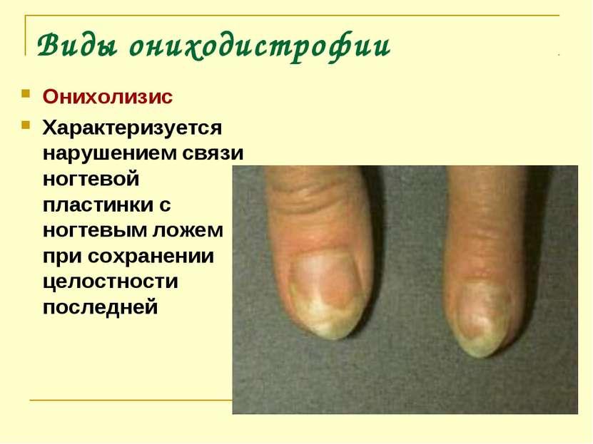 Виды ониходистрофии Онихолизис Характеризуется нарушением связи ногтевой плас...