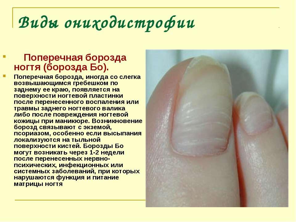 Виды ониходистрофии Поперечная борозда ногтя (борозда Бо). Поперечная бо...