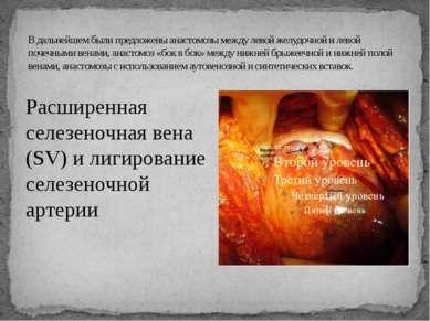 В дальнейшем были предложены анастомозы между левой желудочной и левой почечн...