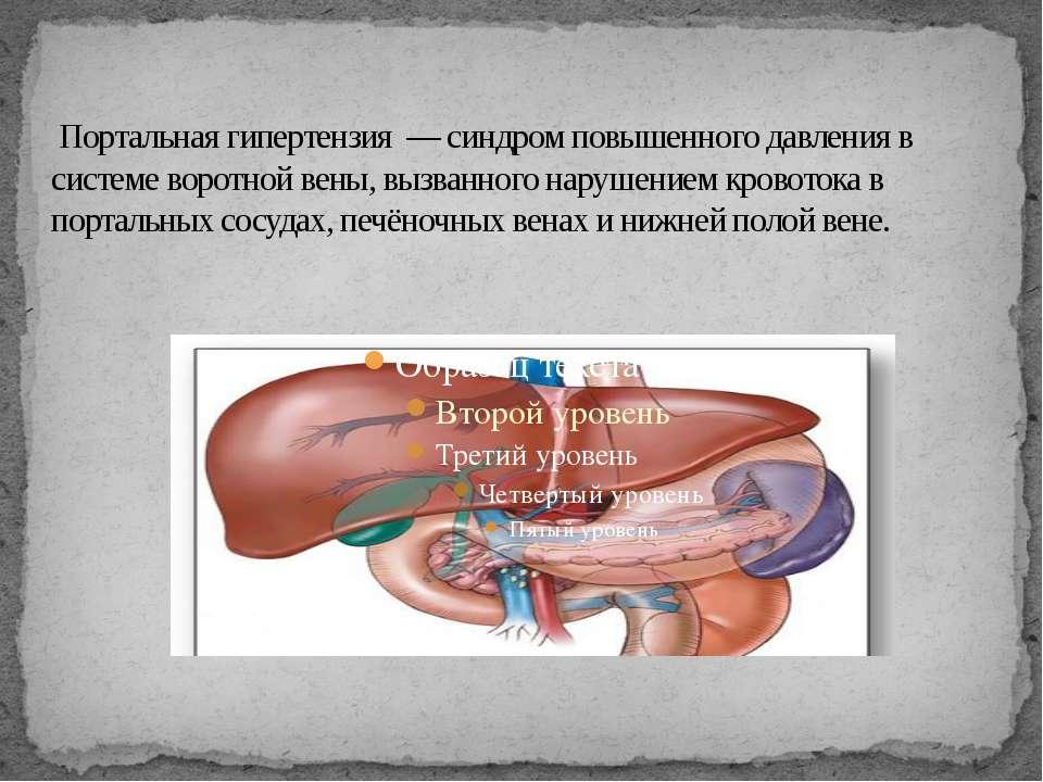 Портальная гипертензия — синдром повышенного давления в системе воротной вены...