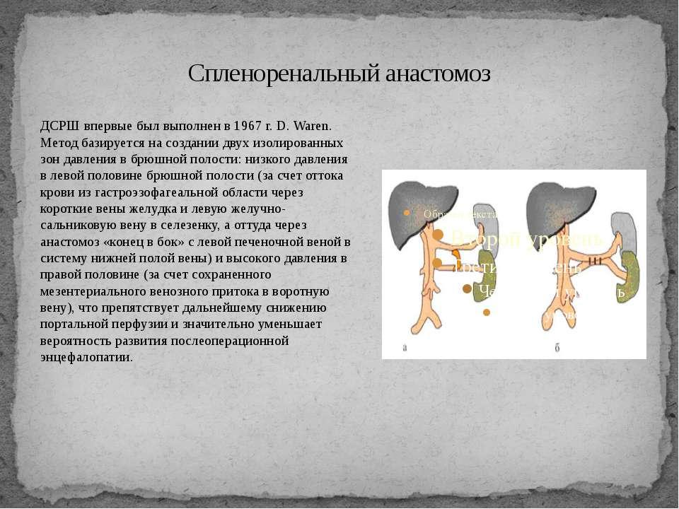 Спленоренальный анастомоз ДСРШ впервые был выполнен в 1967 г. D. Waren. Метод...