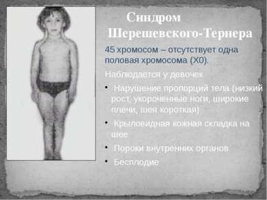 Синдром Шерешевского-Тернера 45 хромосом – отсутствует одна половая хромосома...