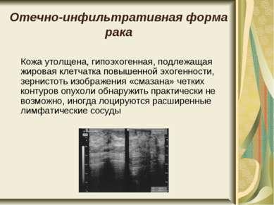 Отечно-инфильтративная форма рака Кожа утолщена, гипоэхогенная, подлежащая жи...