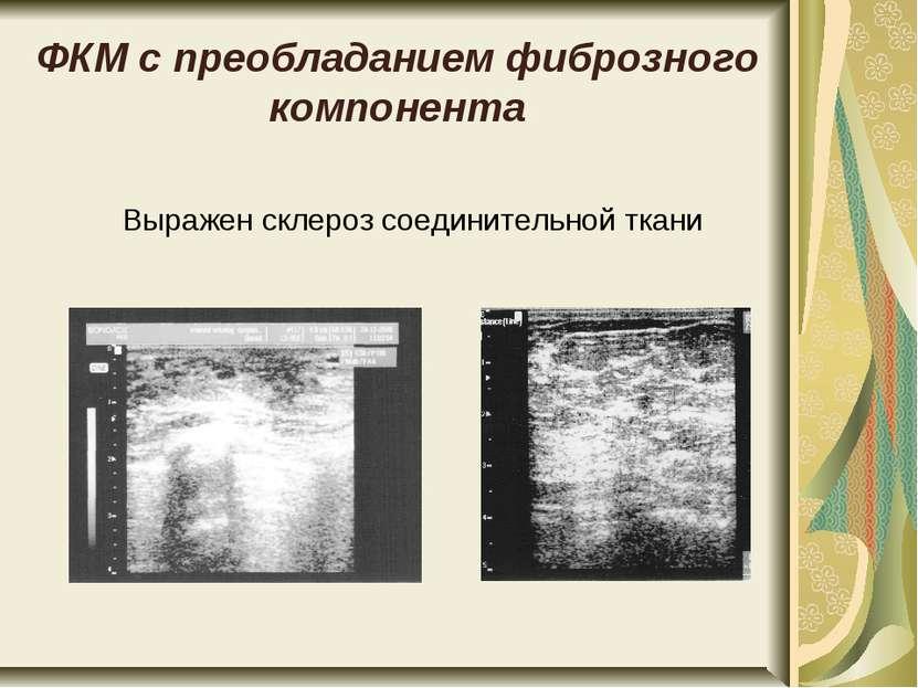 ФКМ с преобладанием фиброзного компонента Выражен склероз соединительной ткани