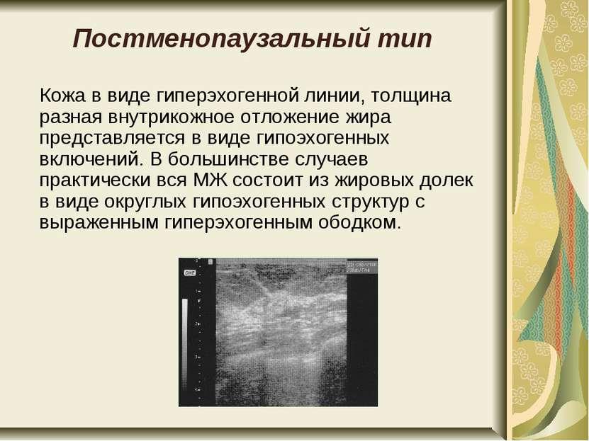 Постменопаузальный тип Кожа в виде гиперэхогенной линии, толщина разная внутр...