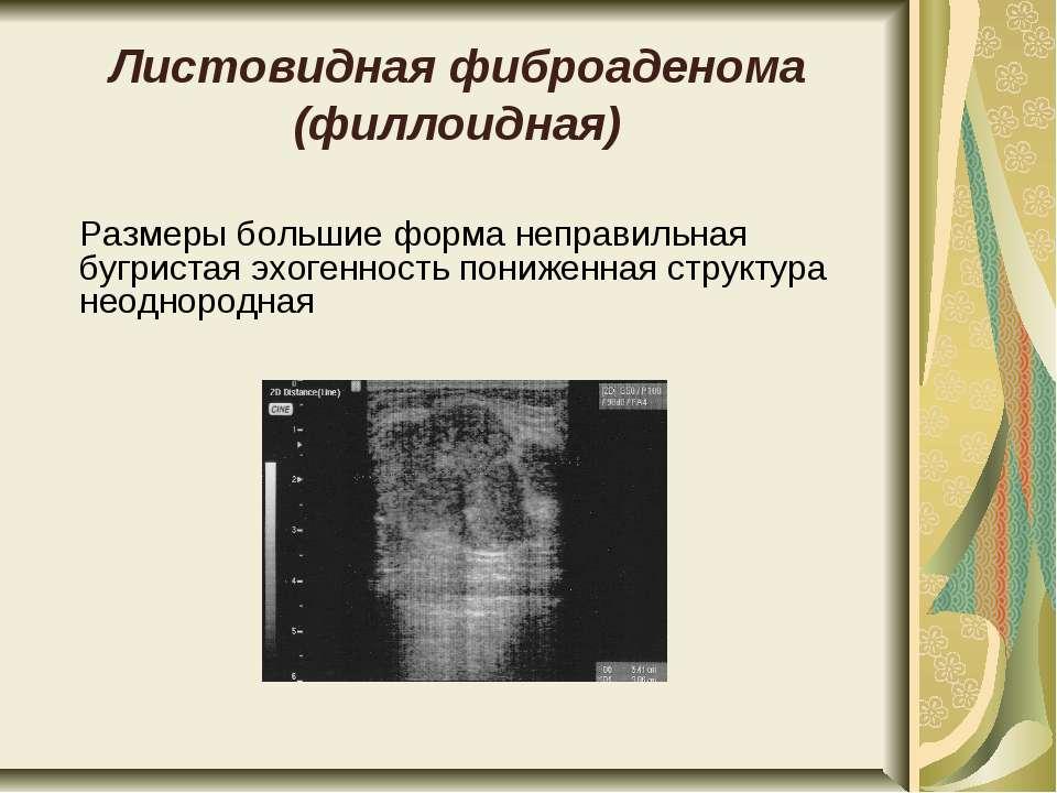 Листовидная фиброаденома (филлоидная) Размеры большие форма неправильная бугр...