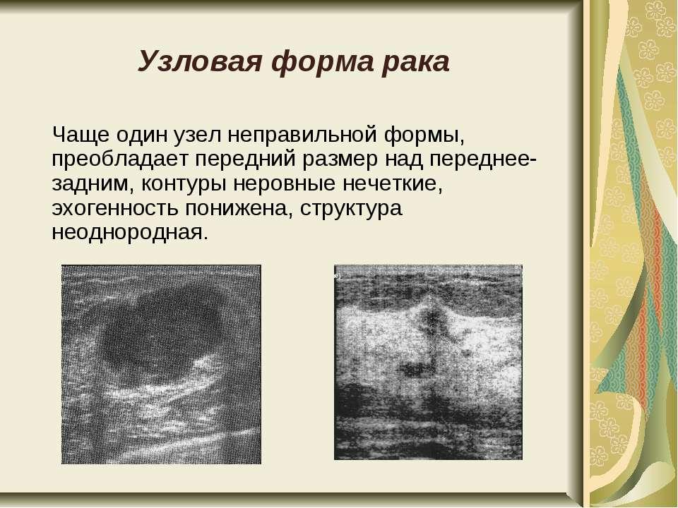 Узловая форма рака Чаще один узел неправильной формы, преобладает передний ра...