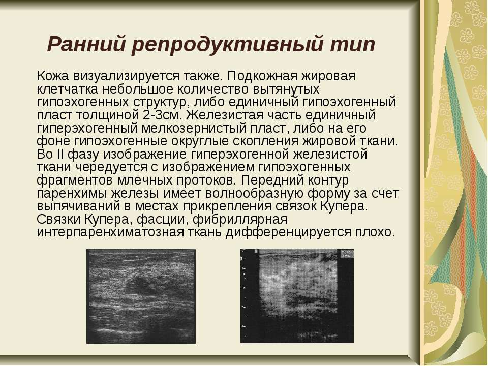 Ранний репродуктивный тип Кожа визуализируется также. Подкожная жировая клетч...