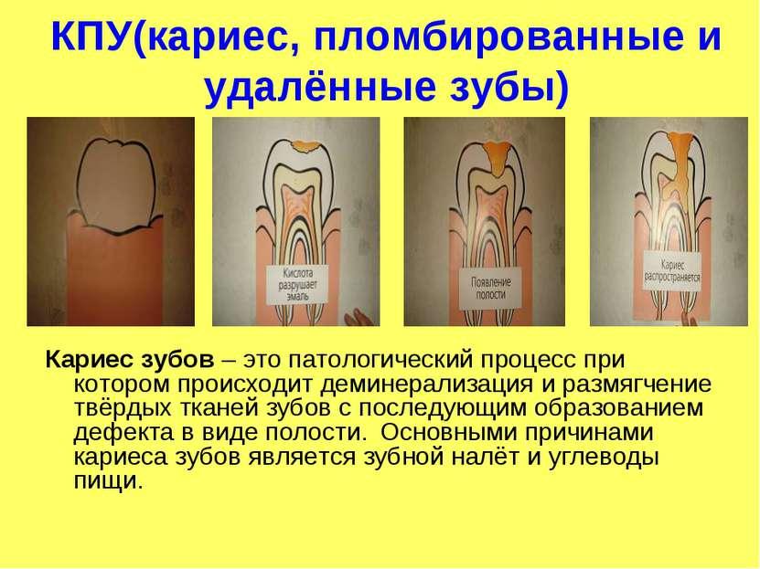 КПУ(кариес, пломбированные и удалённые зубы) Кариес зубов – это патологически...