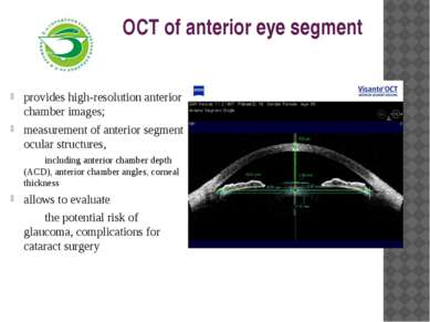 OCT of anterior eye segment provides high-resolution anterior chamber images;...