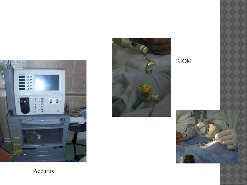 Accurus BIOM