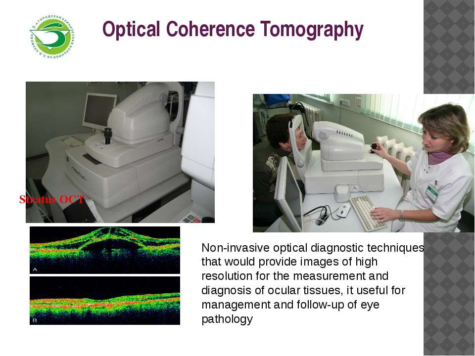 Optical Coherence Tomography Stratus OCT Non-invasive optical diagnostic tech...