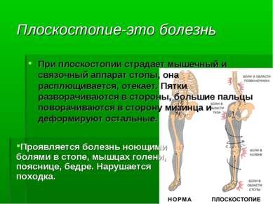 Плоскостопие-это болезнь При плоскостопии страдает мышечный и связочный аппар...