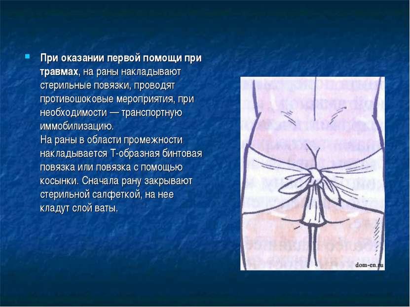 При оказании первой помощи при травмах, на раны накладывают стерильные повязк...