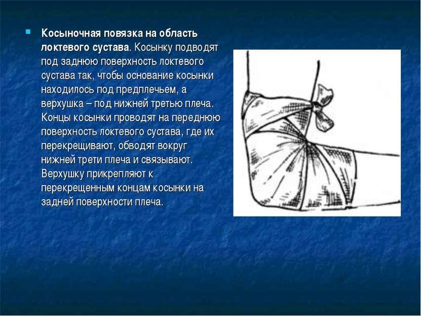 Косыночная повязка на область локтевого сустава. Косынку подводят под заднюю ...