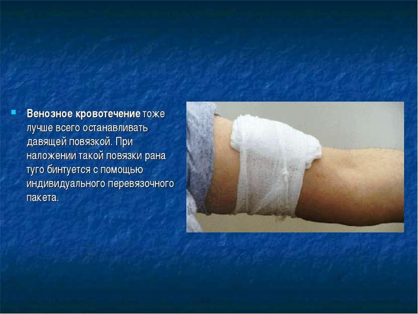 Венозное кровотечение тоже лучше всего останавливать давящей повязкой. При на...