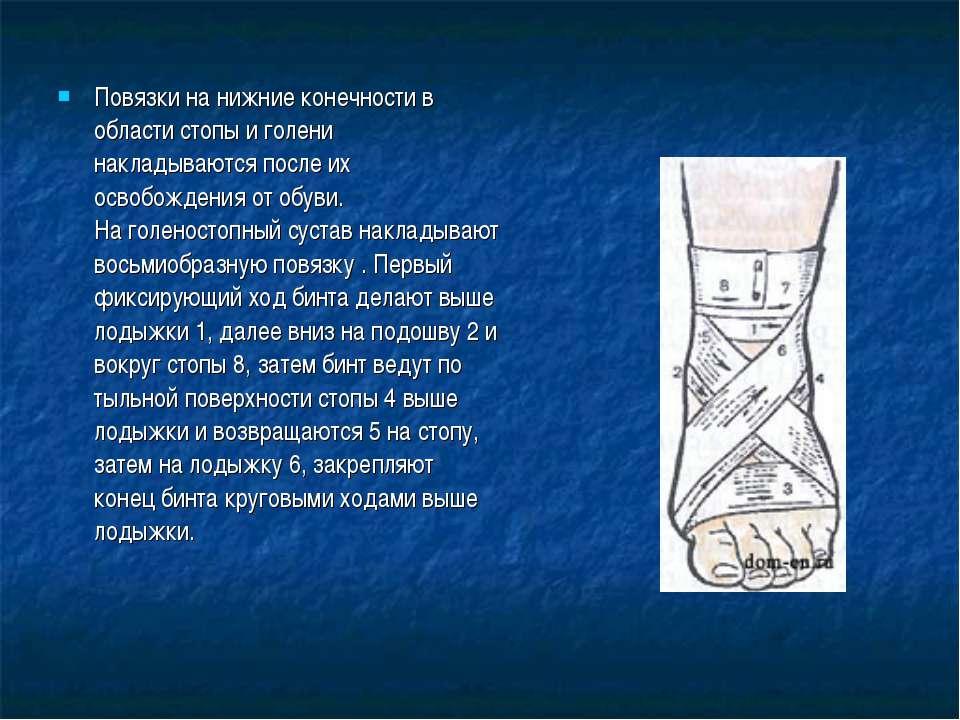 Повязки на нижние конечности в области стопы и голени накладываются после их ...