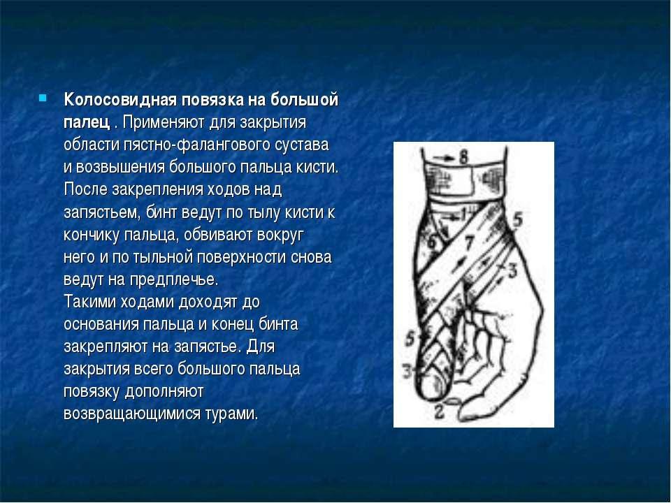 Колосовидная повязка на большой палец . Применяют для закрытия области пястно...