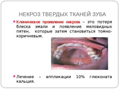 НЕКРОЗ ТВЕРДЫХ ТКАНЕЙ ЗУБА Клиническое проявление некроза – это потеря блеска...