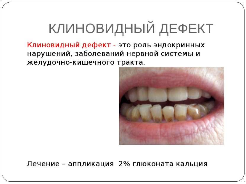 КЛИНОВИДНЫЙ ДЕФЕКТ Клиновидный дефект - это роль эндокринных нарушений, забол...