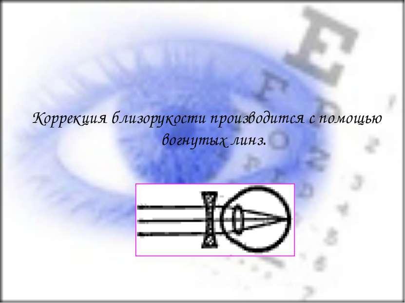 Коррекция близорукости производится с помощью вогнутых линз.