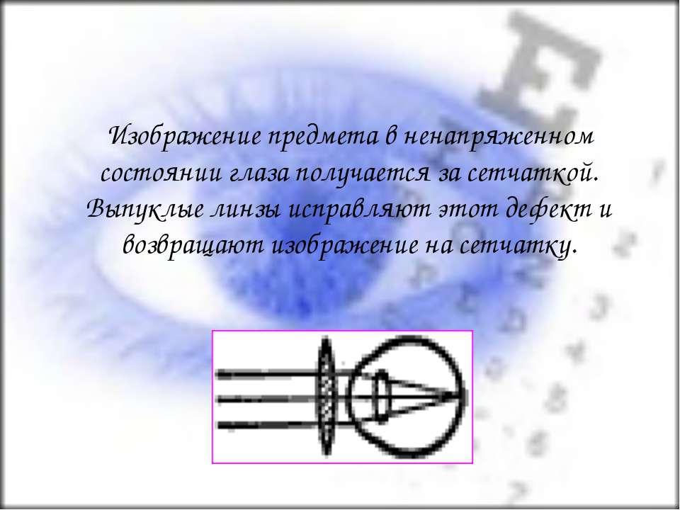 Изображение предмета в ненапряженном состоянии глаза получается за сетчаткой....