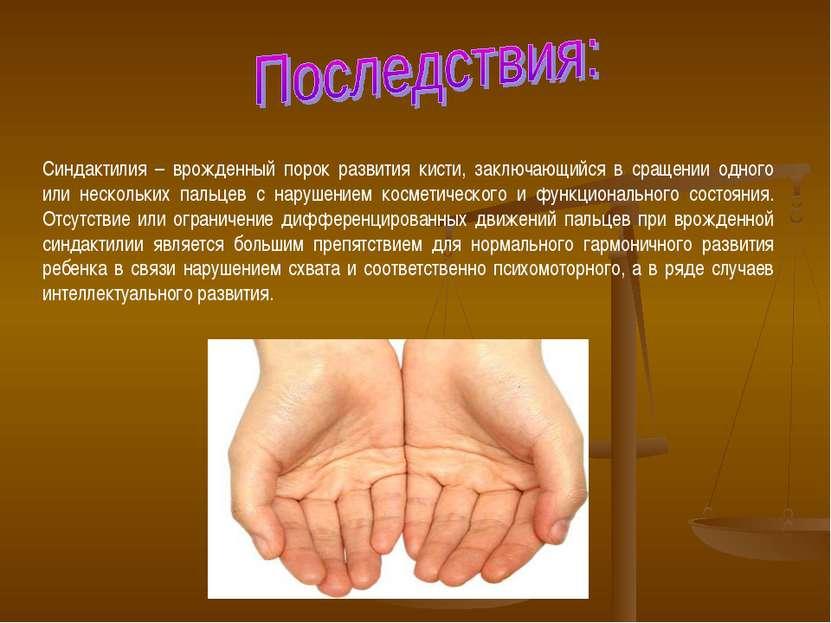 Синдактилия – врожденный порок развития кисти, заключающийся в сращении одног...