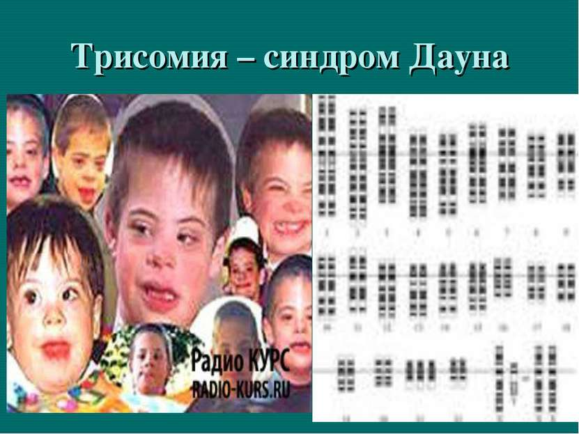 Трисомия – синдром Дауна