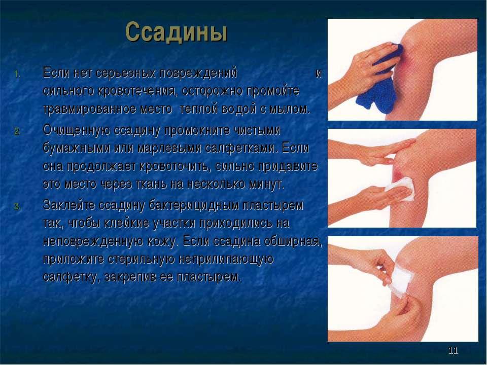 * Ссадины Если нет серьезных повреждений и сильного кровотечения, осторожно п...