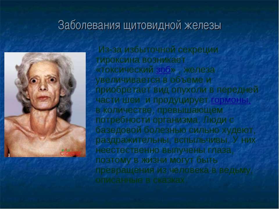 Заболевания щитовидной железы Из-за избыточной секреции тироксина возникает «...