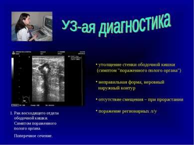 1. Рак восходящего отдела ободочной кишки. Симптом пораженного полого органа....
