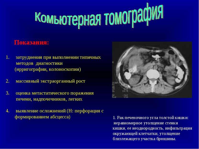 Доксициклин в лечении простатита