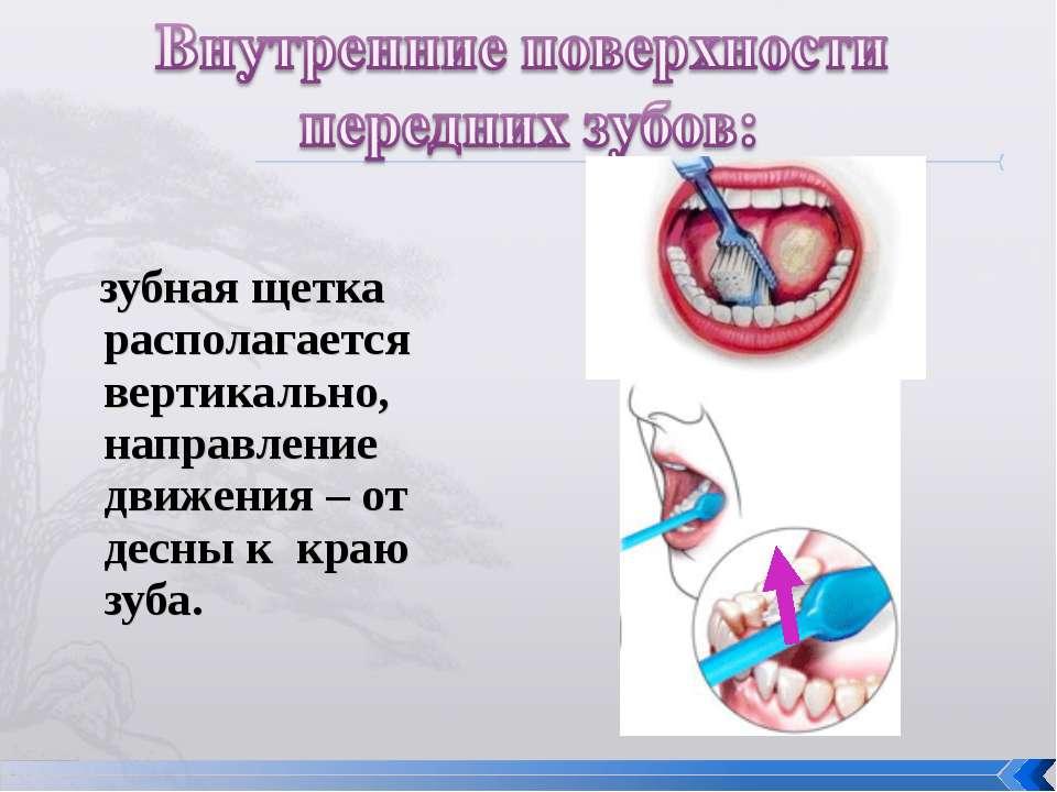 зубная щетка располагается вертикально, направление движения – от десны к кра...