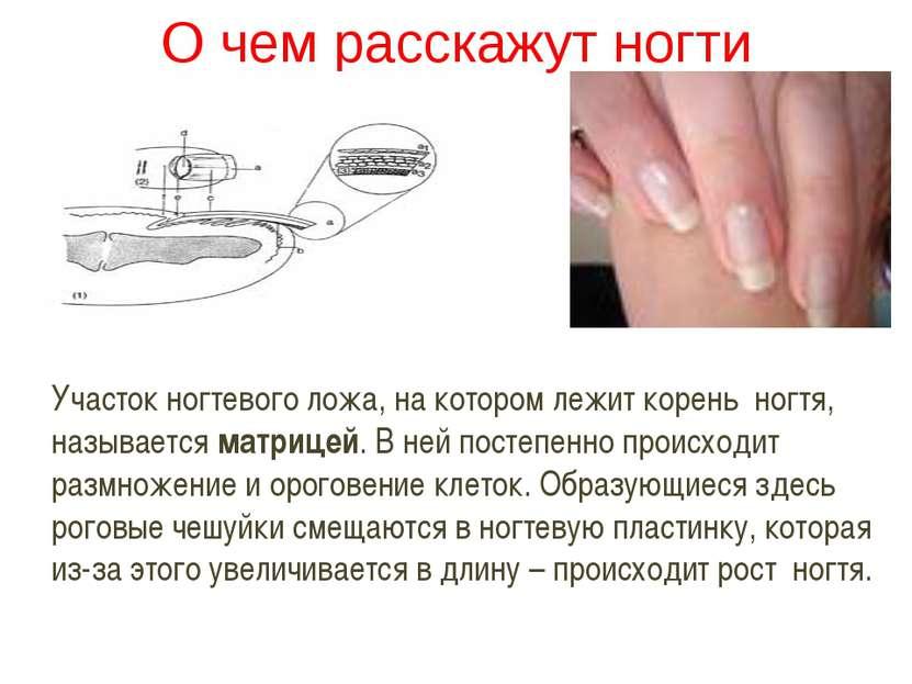 О чем расскажут ногти Участок ногтевого ложа, на котором лежит корень ногтя, ...