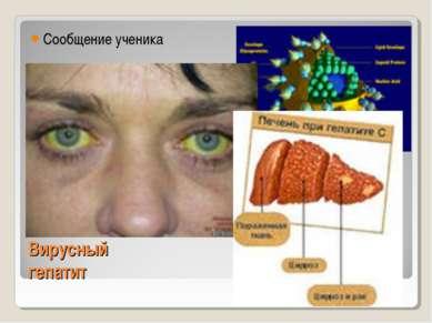 Вирусный гепатит Сообщение ученика
