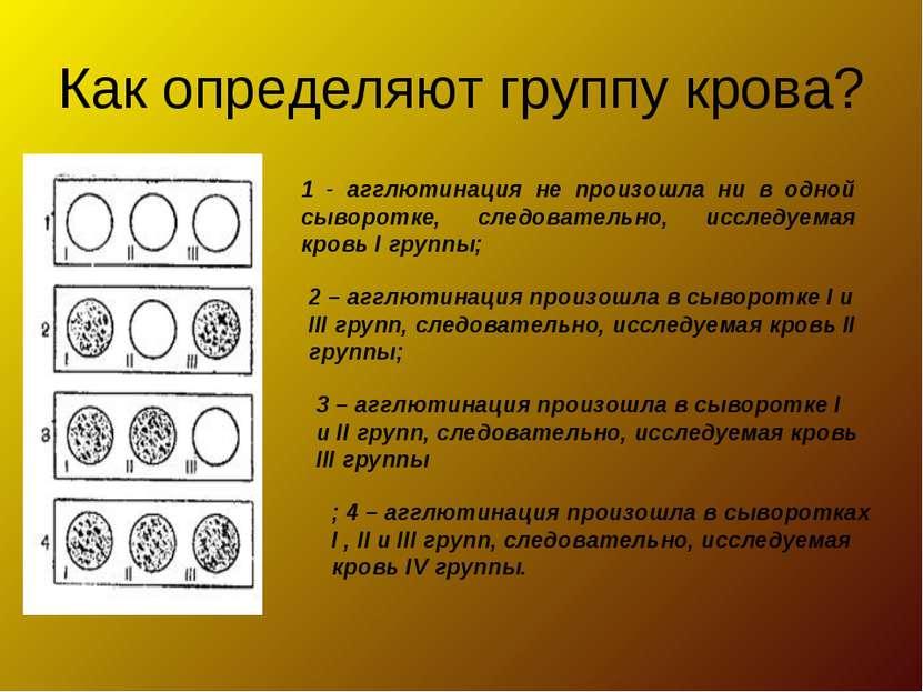 Как определяют группу крова? 1 - агглютинация не произошла ни в одной сыворот...