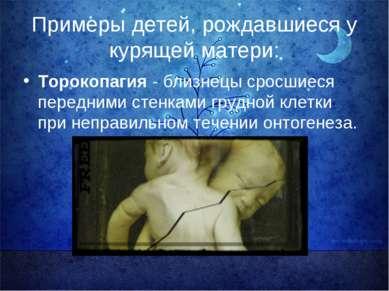 Примеры детей, рождавшиеся у курящей матери: Торокопагия - близнецы сросшиеся...