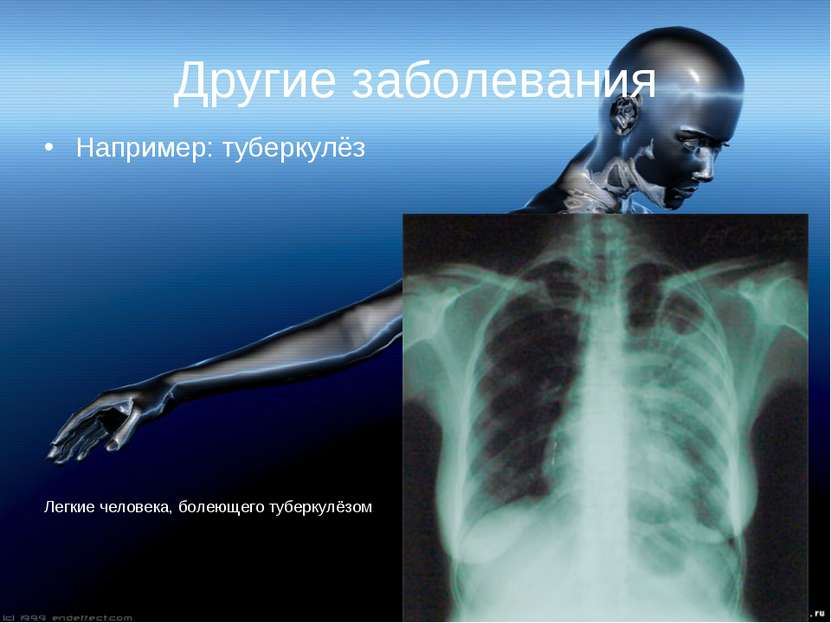 Другие заболевания Например: туберкулёз Легкие человека, болеющего туберкулёзом