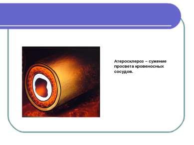Атеросклероз – сужение просвета кровеносных сосудов.