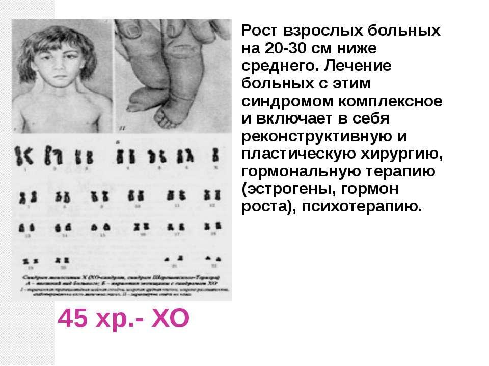 45 хр.- ХО Рост взрослых больных на 20-30 см ниже среднего. Лечение больных с...