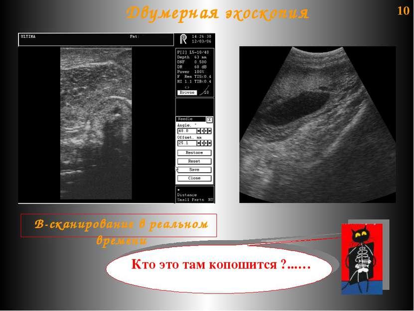 10 В-сканирование в реальном времени Двумерная эхоскопия