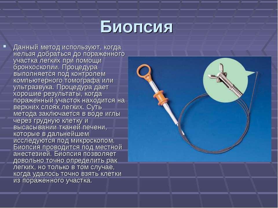 Биопсия Данный метод используют, когда нельзя добраться до пораженного участк...
