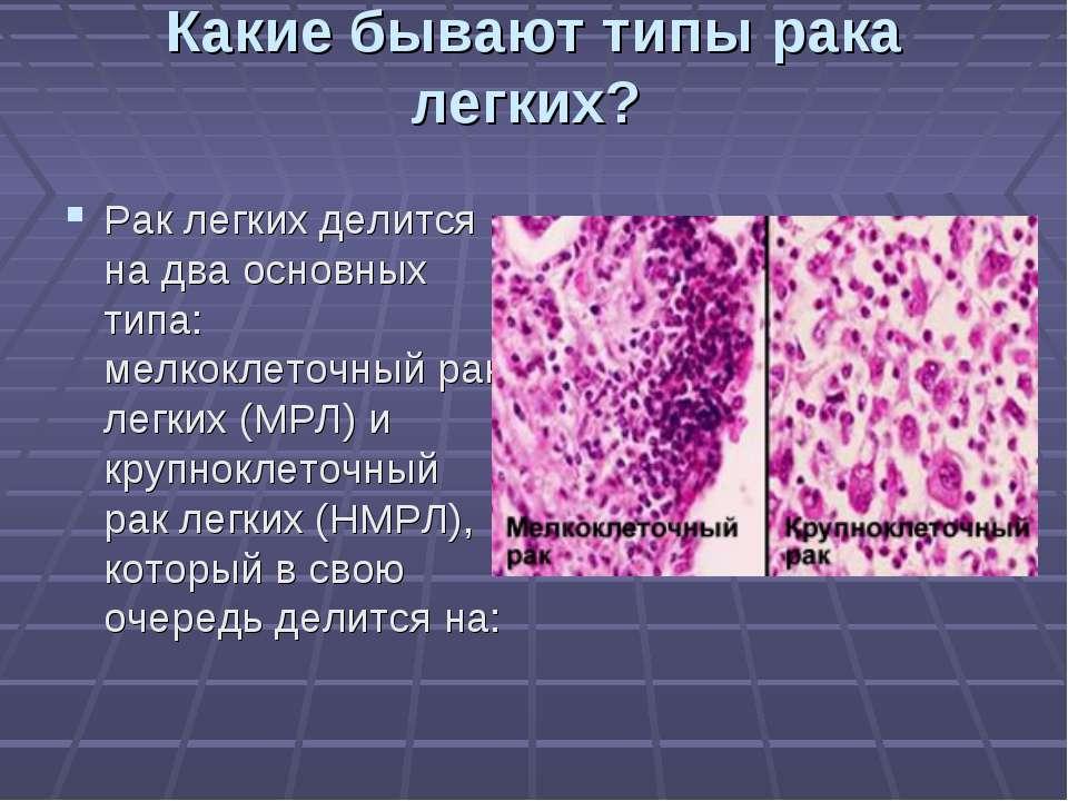 Какие бывают типы рака легких? Рак легких делится на два основных типа: мелко...