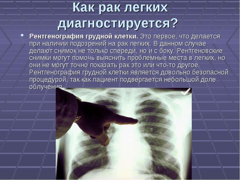 Как рак легких диагностируется? Рентгенография грудной клетки. Это первое, чт...