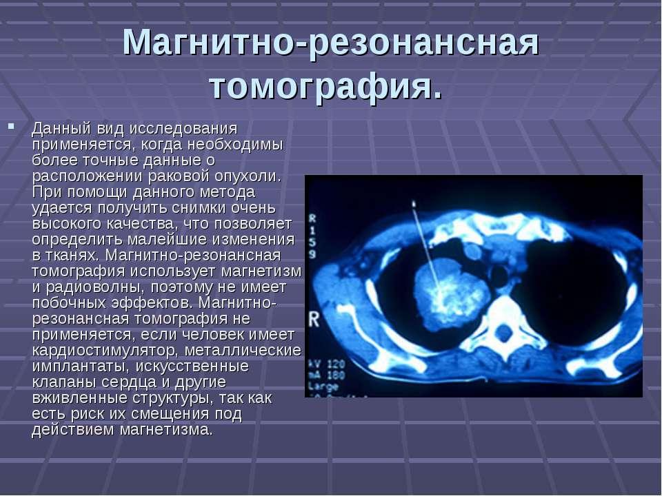 Магнитно-резонансная томография. Данный вид исследования применяется, когда н...