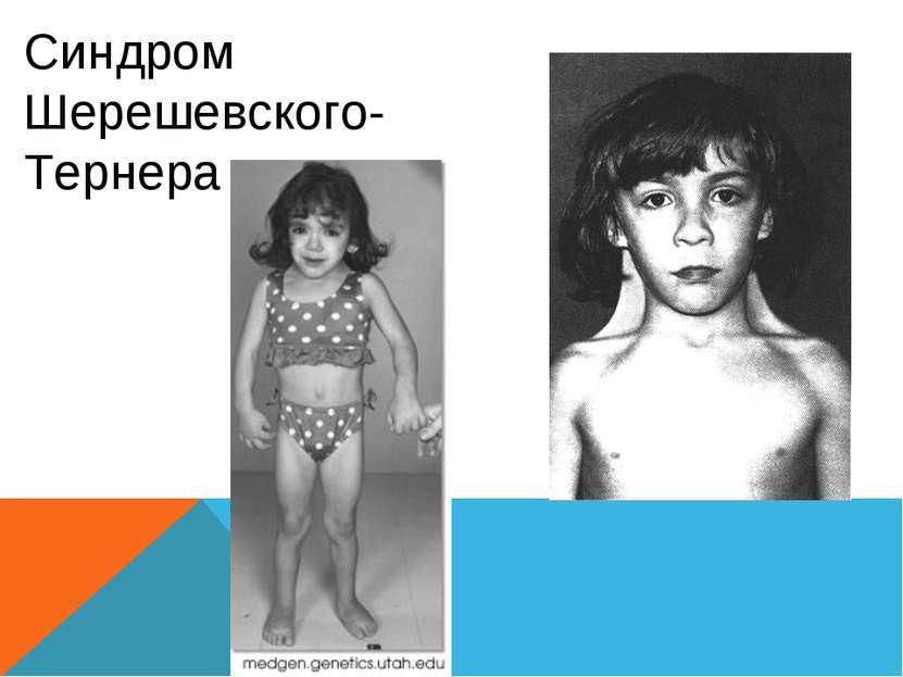 Синдром Шерешевского- Тернера