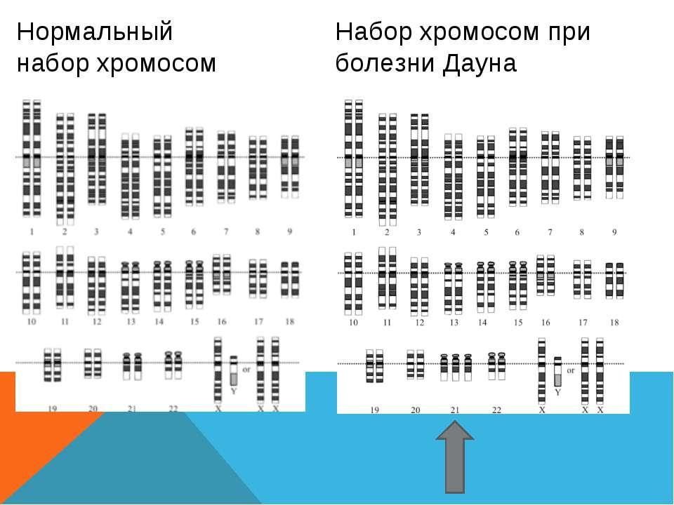 Нормальный набор хромосом Набор хромосом при болезни Дауна